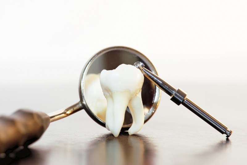 Things to Avoid After the Extraction of Your Wisdom Teeth