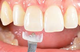 What Is Dental Crown: Get Complete Information Here!