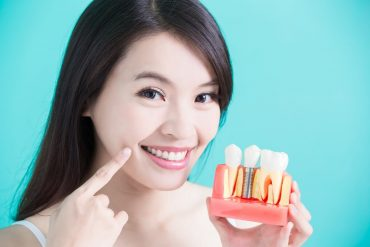 Tips to Help You Find Dental Implants Offices That is Best for You